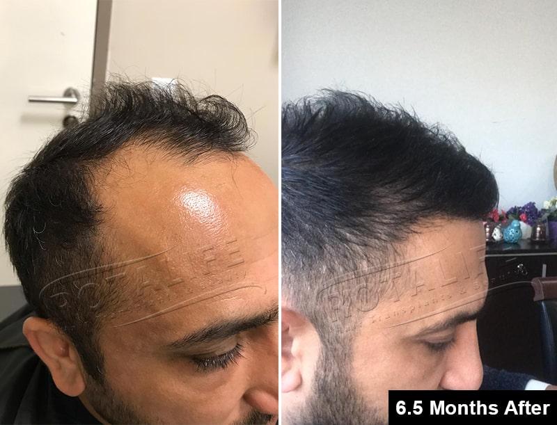 transplantin e flokëve para pas