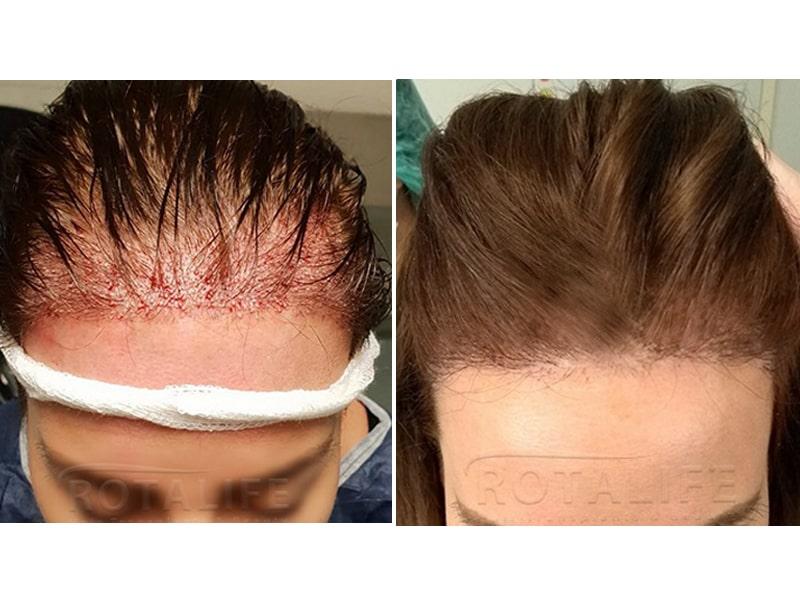 Mbjellja e flokëve DHI