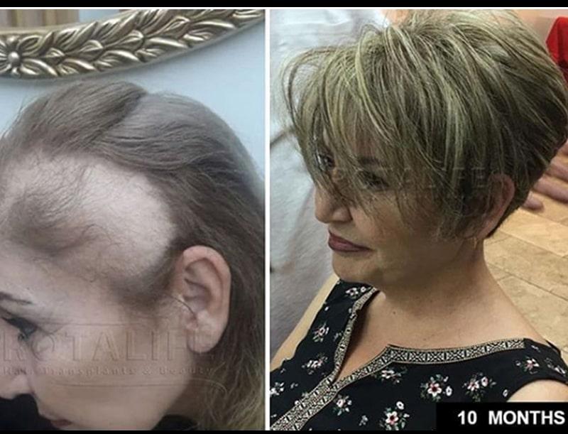 mbjellje flokësh për gra