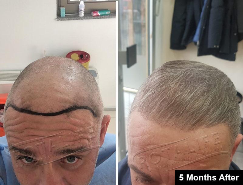 implant flokësh Turqi