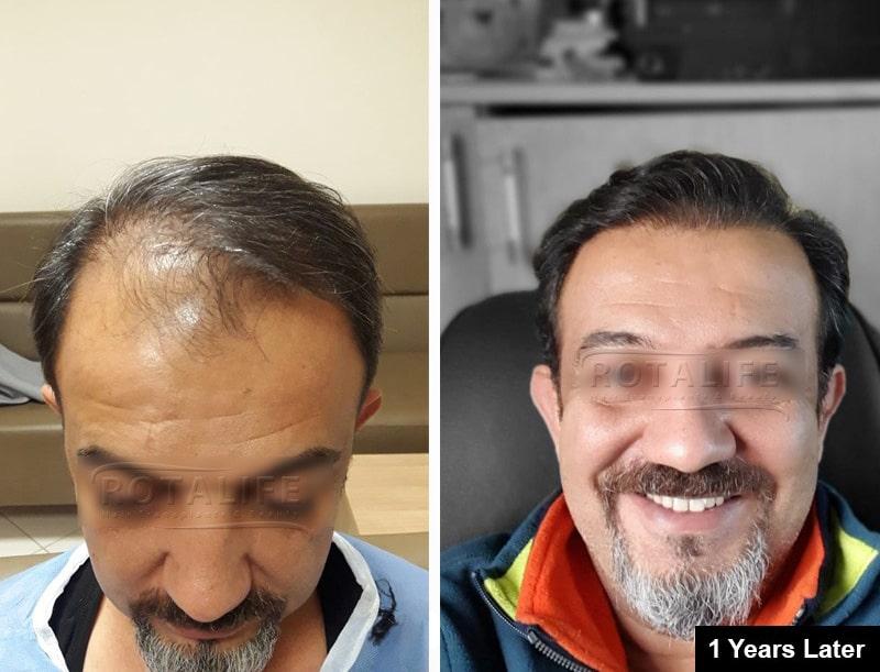 mbjellje flokësh Turqi